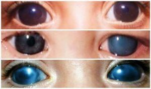 Глаукоманың жедел ұстамасы