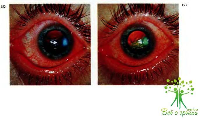 Токсико-аллергиялық кератит