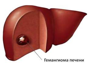 Бауыр гемангиомасы