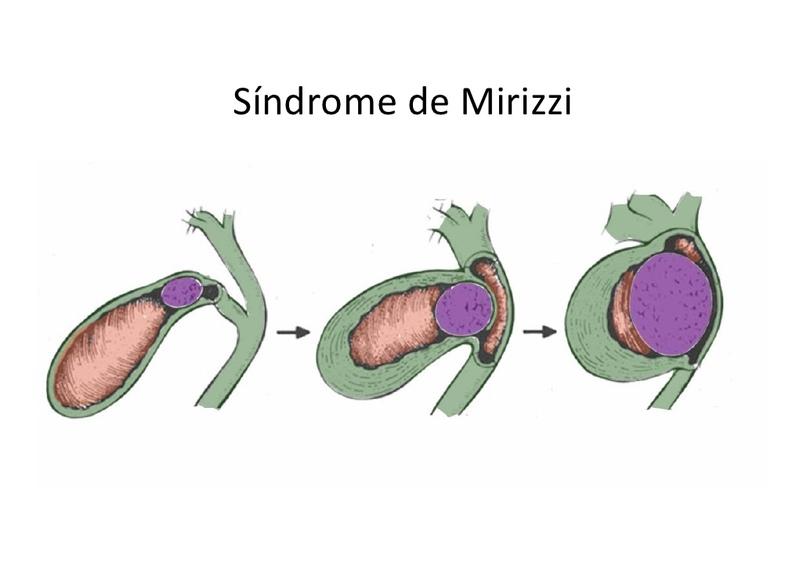 Мириззи синдромы