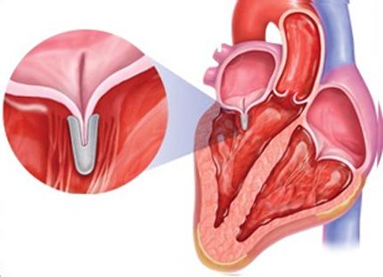 Митральді қақпақшаның бұзылу синдромы: жетіспеушілік