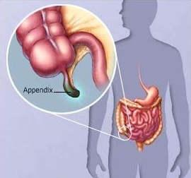 Жедел аппендициттің асқынулары
