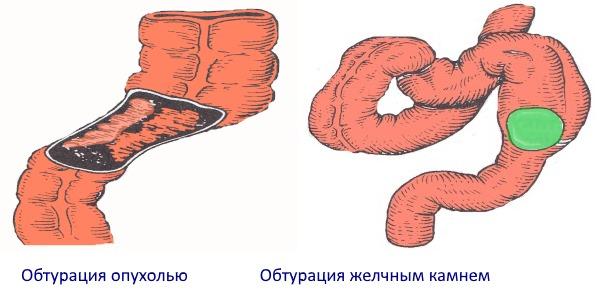 Странгуляциялық іш түйілуі