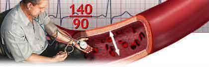 Эссенциалды артериялық гипертензия синдромы