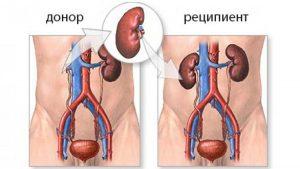 Бүйрек трансплантациясы