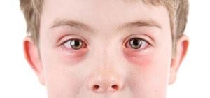 Аллергиялық конъюктивит