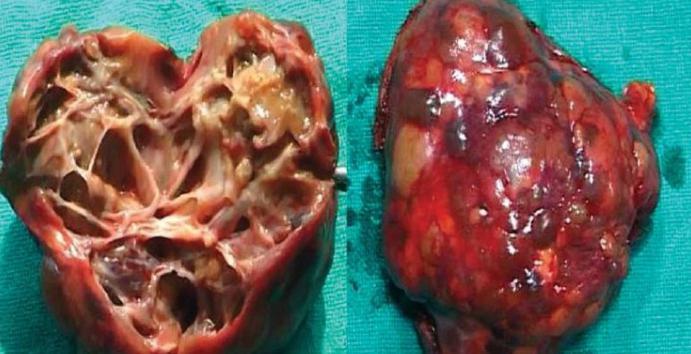 Бауырдың гидативті эхинококкозы