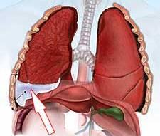 Өкпе ұлпасының инфильтраттық тығыздалу синдромы