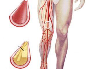 Облитерациялық эндоартериит