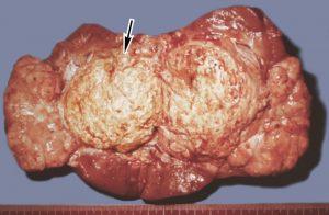 Амилоидоз