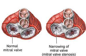 Митральді қақпақшаның бұзылу синдромы: тарылуы (стенозы)