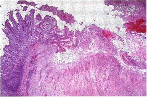 Асқазан ісігінің макроскопиялық түрлері