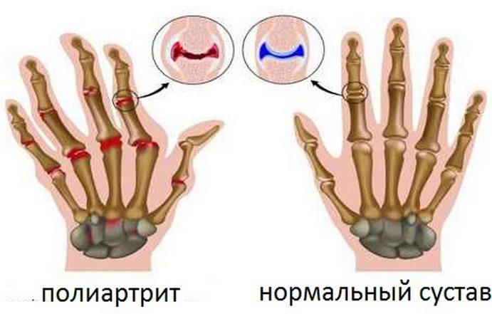 Түйінді полиартериит кезіндегі бүйректің зақымдалуы