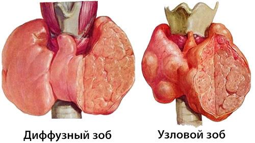 Диффузды токсикалық зоб