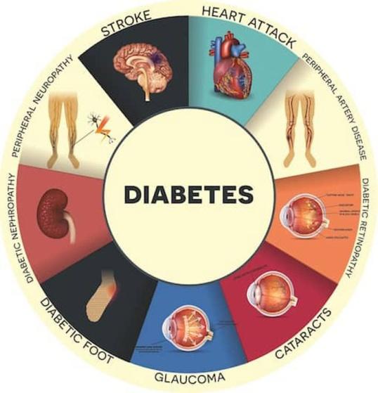 Қант диабеті (ҚД)