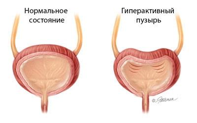 Қуықтың дисфункциясы