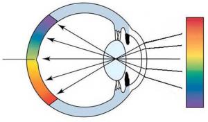 Рефракцияның субьективті наықтау тәсілі, рефракцияның аномалиясын түзету принциптері