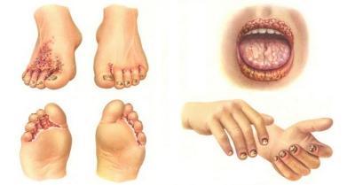 Тромботикалық микроангиопатиялар (ТМА)