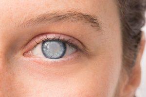 Біріншілік глаукома