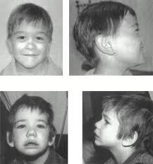Аутосомды-доминантты Альпорт синдромы